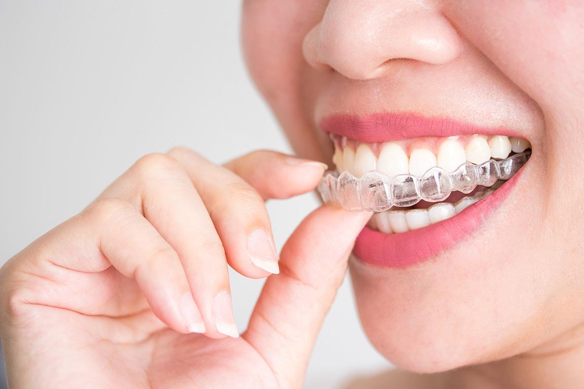 recomendaciones-ortodoncia-covid19-clinica-dental-dentality